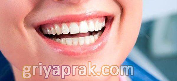 implant fiyatları, implant yapımı, implant tedavileri