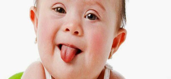 otizm nedir, otizmin nedenleri nelerdir, otizm tedavi edilebilir mi