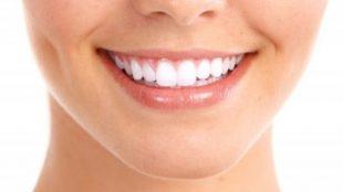 diş estetiği nedir, diş estetiği nasıl yapılır