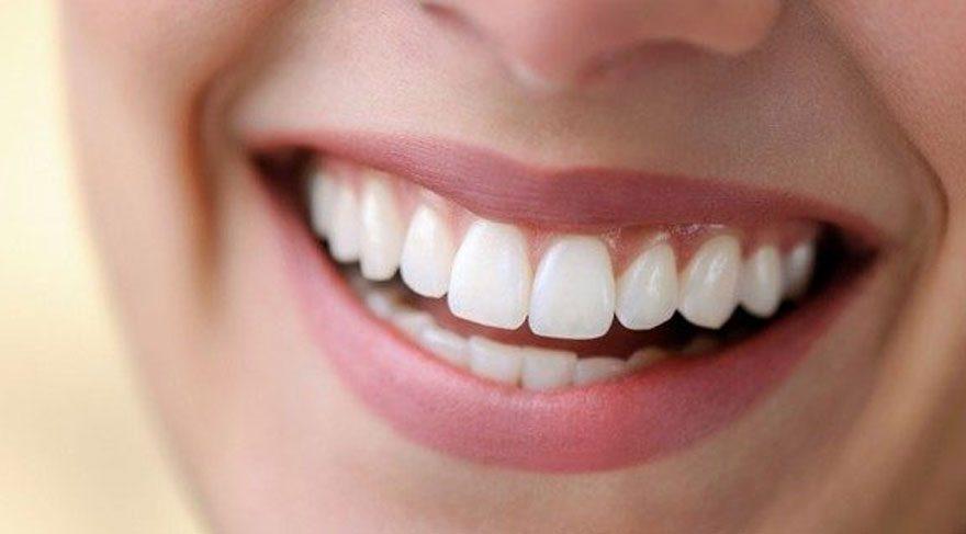 lamine diş yaptırma, lamine diş uygulaması, lamine diş uyglaması nasıl yapılır