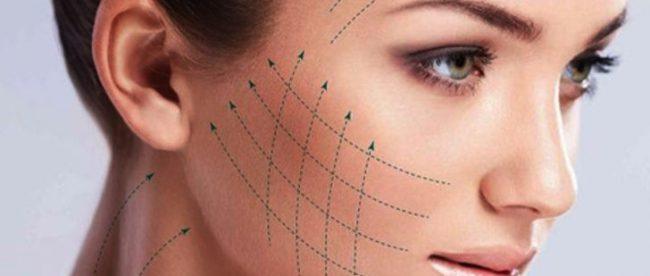 yüz gerdirme ameliyatı, yüz gerdirme operasyonu, yüz germe işlemi