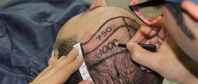 saç ekimi yapımı, saç ekimi sonrası, saç ekiminden sonra yapılması gerekenler