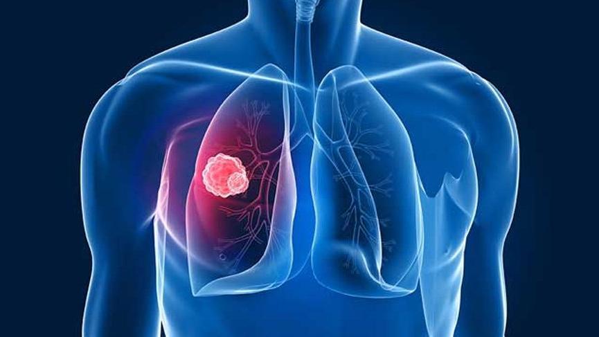 küçük hücreli akciğer kanseri, akciğer kanseri tedavisi, akciğer kanseri tanısı