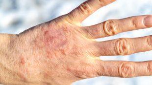 sinirsel egzama, sinirsel egzama tedavisi, egzama nasıl tedavi edilir