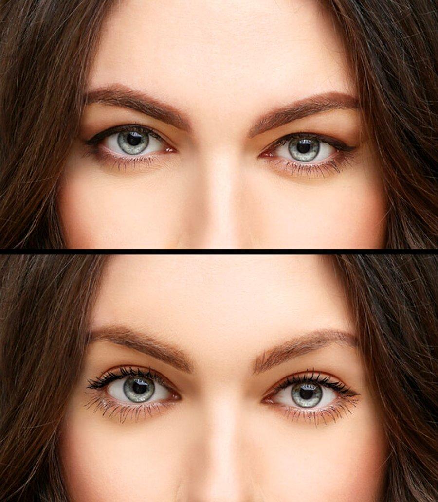 göz estetiği, göz estetiği yapımı, göz estetiği yaptırma
