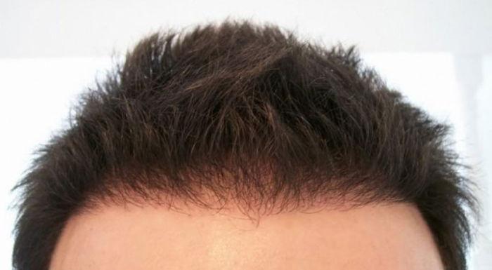 prp kullanımı, saç ekimi, saç ekiminde prp kullanımı