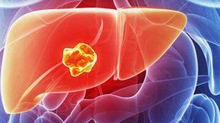 karaciğer kanseri, karaciğer kanseri belirtileri, karaciğer kanseri nasıl tedavi edilir