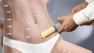 liposuction yapımı, liposuction nedir, liposuction nasıl yapılır