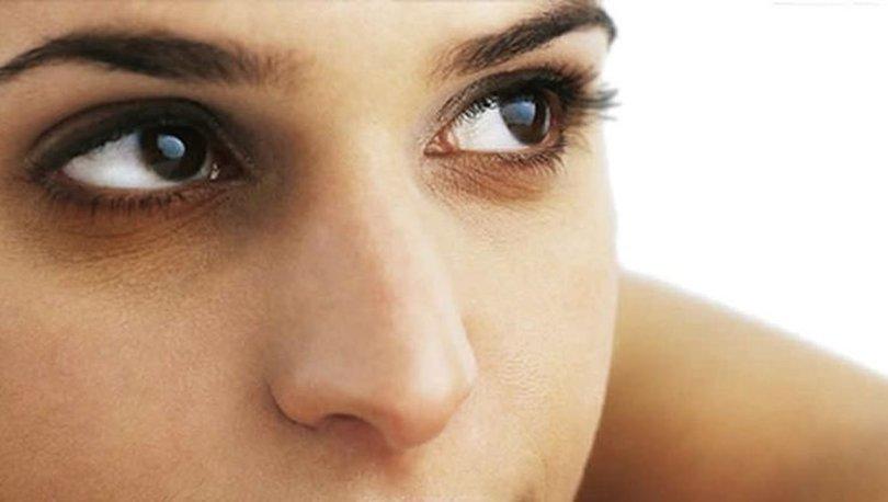 göz altı morlukları, göz altı neden morarır, göz altı morluklarına bitkisel çözümler