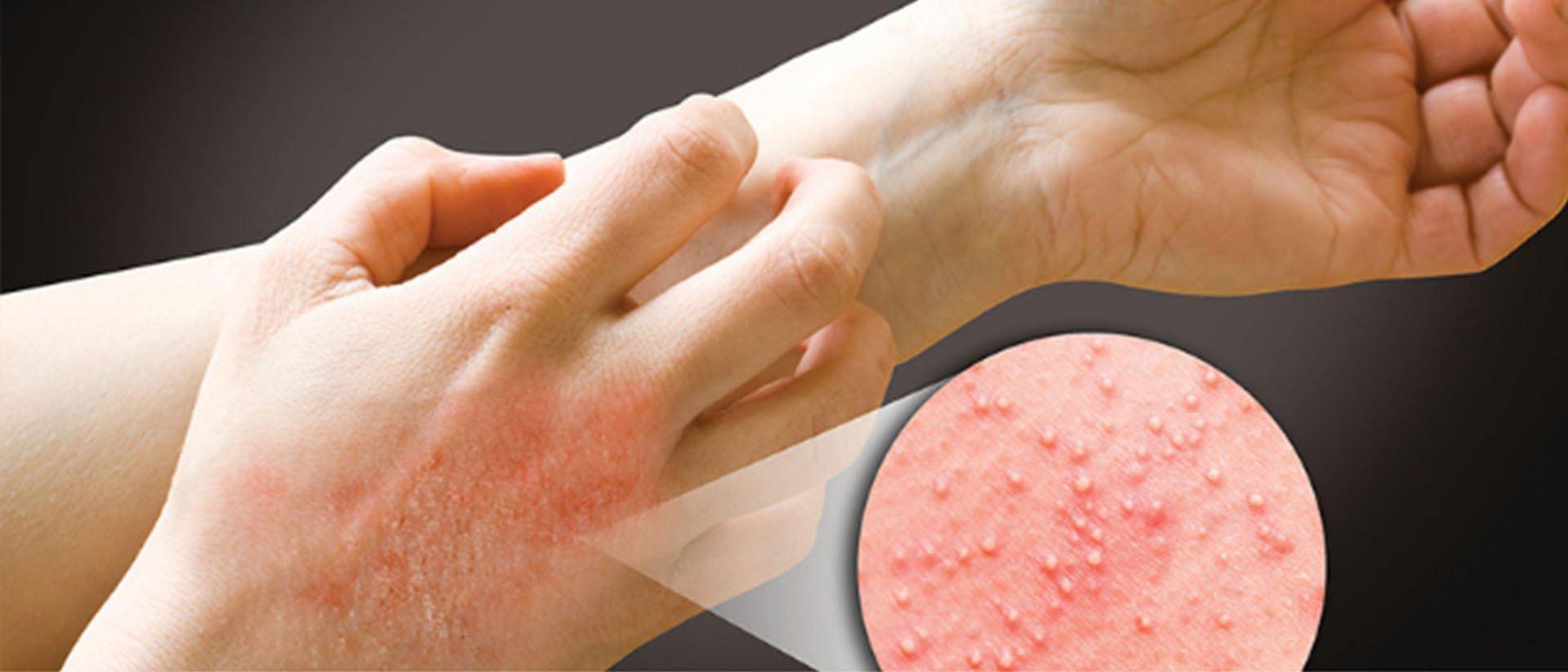 alerji teşhisi, alerji tedavisi, alerji nasıl tedavi edilir