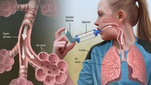 alerjik astım nedenleri, alerjik astım tedavisi, alerjik astım neden olur