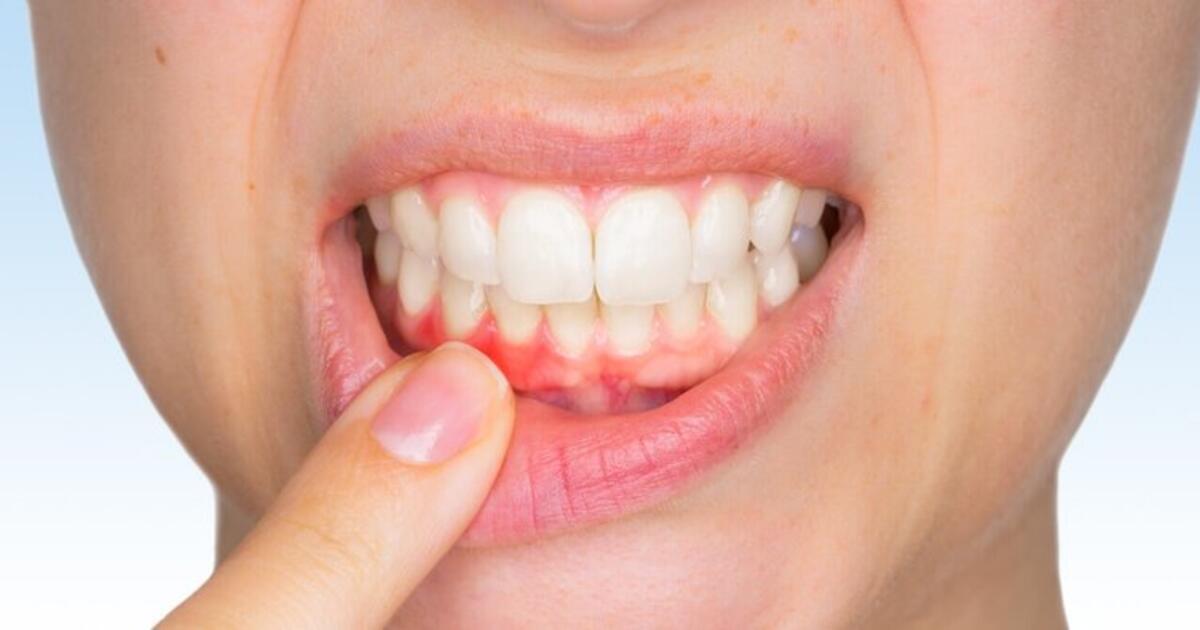 diş eti çekilmesi, diş eti çekilmesi nedenleri, diş eti çekilmesi sebepleri