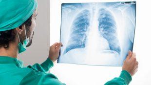 göğüs cerrahisi, üroloji cerrahisi, robotik cerrahi ile göğüs ve üroloji çalışmaları