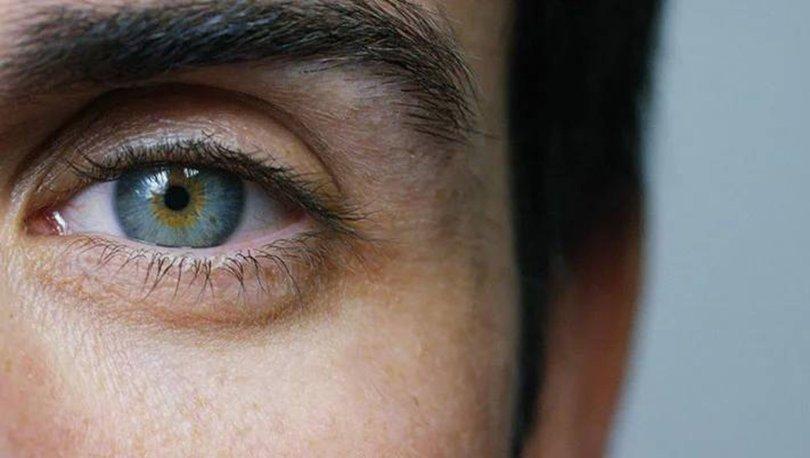 sarı nokta hastalığı, sarı nokta hastalığı teşhisi, sarı nokta hastalığı nedenleri